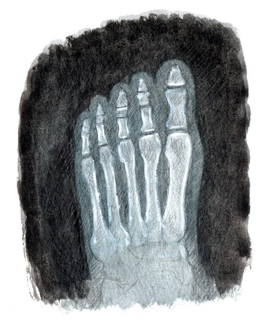 CandelaPan-radiografía